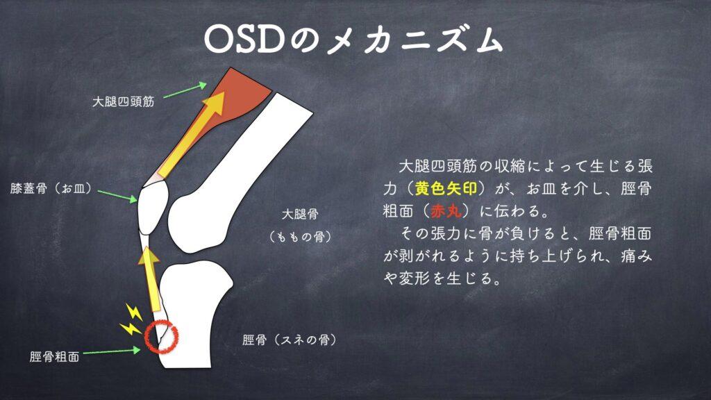 オスグッドを引き起こす身体の使い方