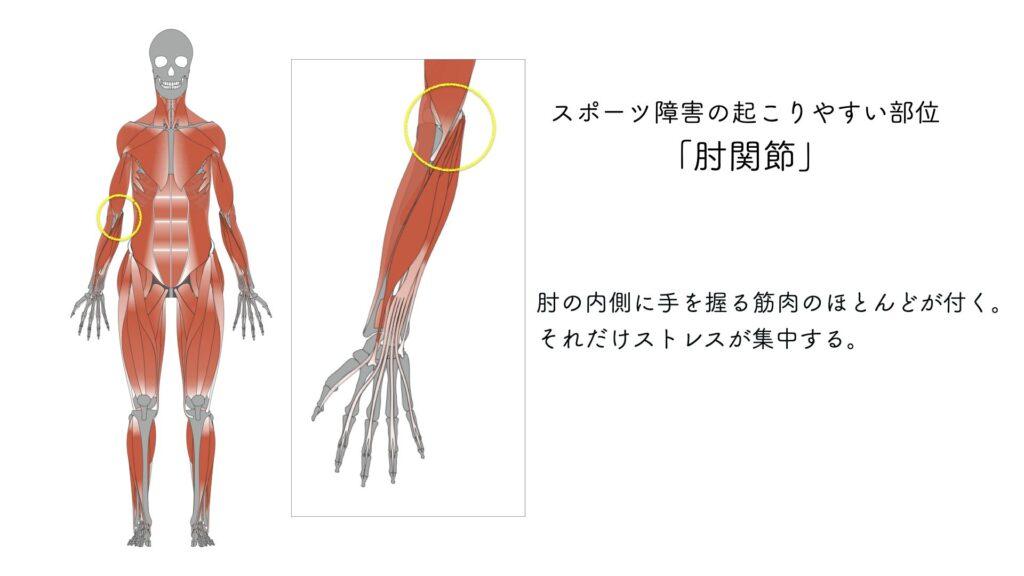 スポーツ障害 肘関節